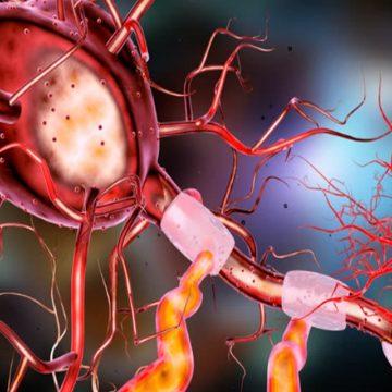 EN BALEARES, LOS INGRESOS HOSPITALARIOS POR CAUSAS NEUROLÓGICAS HAN AUMENTADO UN 35% RESPECTO A HACE 15 AÑOS